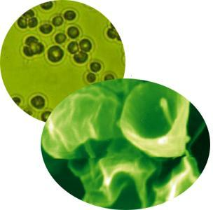 chlorella-algue-en-gelules